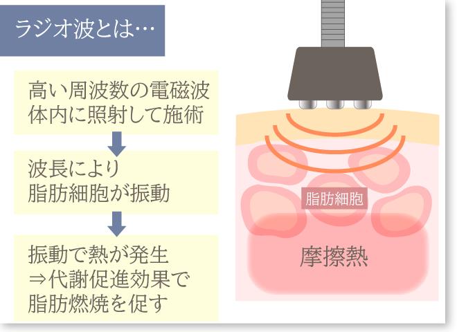 医療ラジオ波の仕組みグレー枠