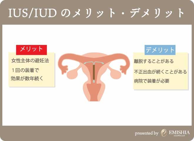 IUS・IUDについて