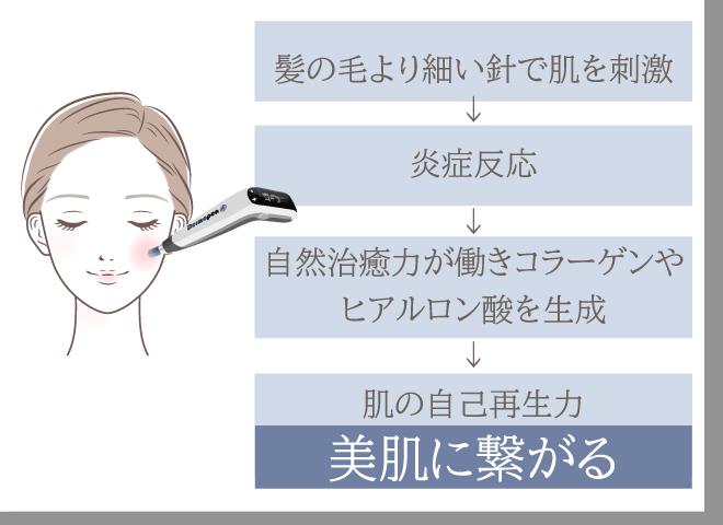 ダーマペン4の仕組み