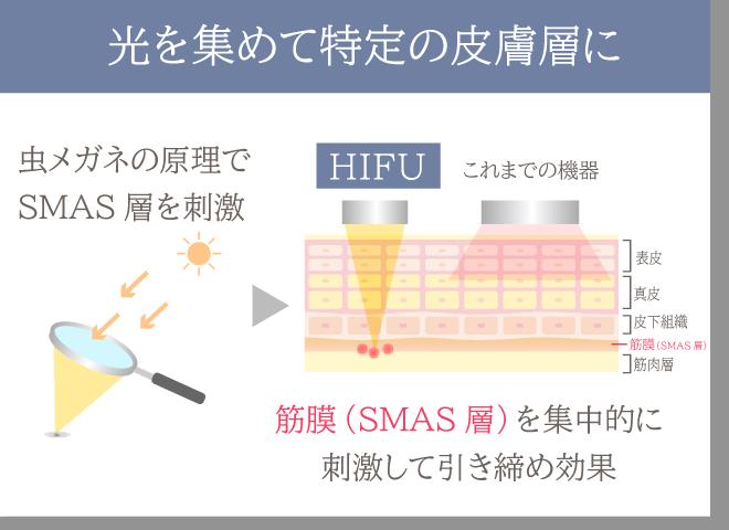 HIFUの仕組み